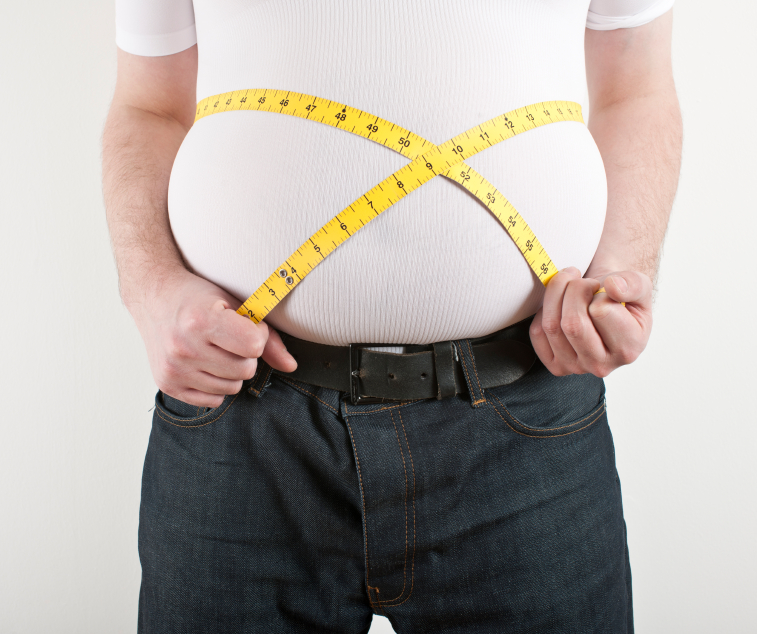 Obesity   What You Need to Know - Doctor
